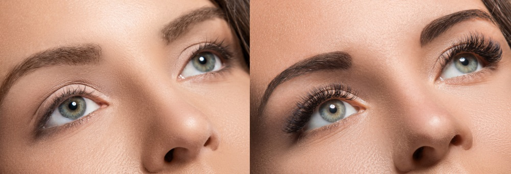 Eyelash Extensions Before & After Photo